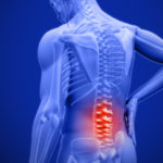 Rachelle Buchbinder: Lancet series on low back pain