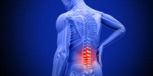 Rachelle Buchbinder: Lancet series on low back pain